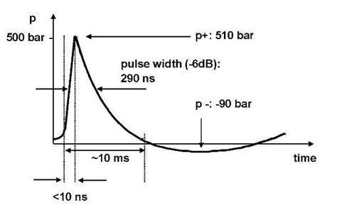 72a79422577 As ondas de choque são divididas em dois tipos  FOCAL E RADIAL. As duas  tecnologias diferem quanto aos aspectos físicos