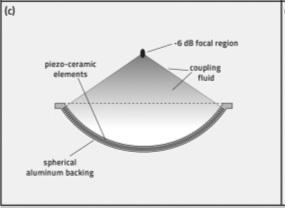 385daac701d O gerador piezo elétrico produz ondas de choque por uma descarga de alta  voltagem através de um padrão de cristais piezo elétricos montados na  superfície ...